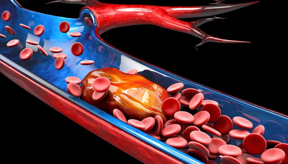 Healthstories-thrombosis