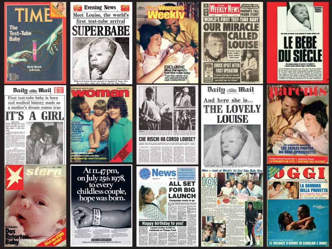 Το πρώτο μωρό που γεννήθηκε με εξωσωματική γονιμοποίηση - Δείτε σήμερα τη Λουίζ Μπράουν