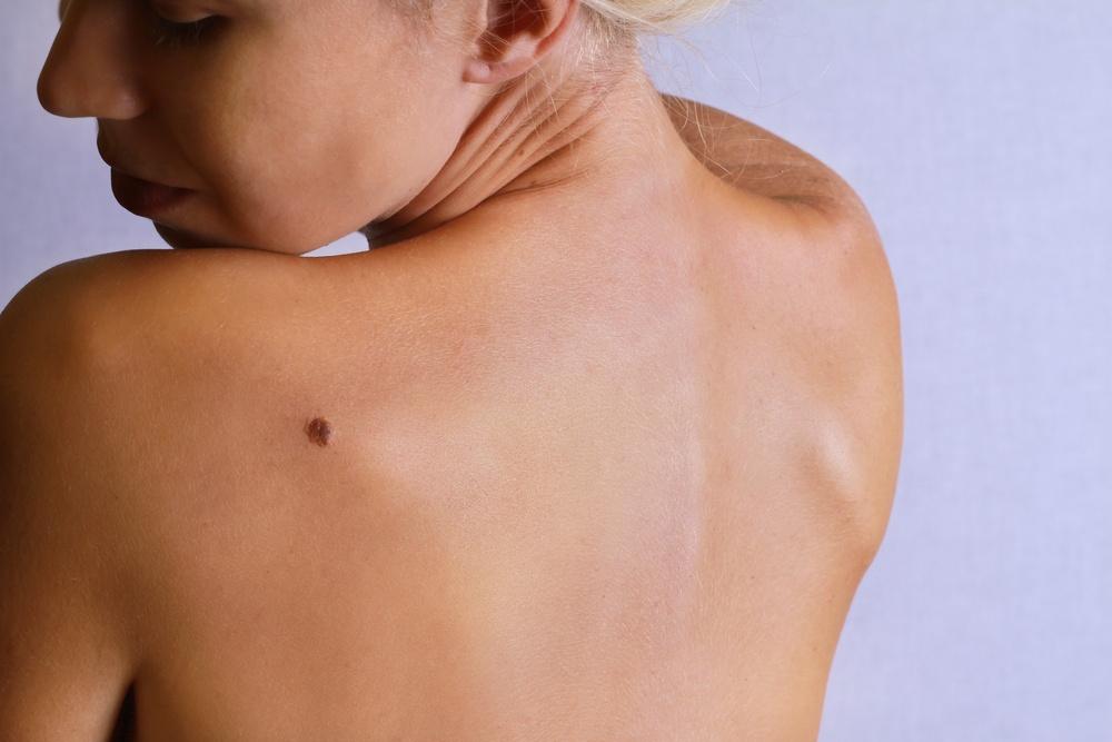 Healthstories- Όλες οι μορφές του μελανώματος και τα συμπτώματα που δεν πρέπει να αγνοήσετε
