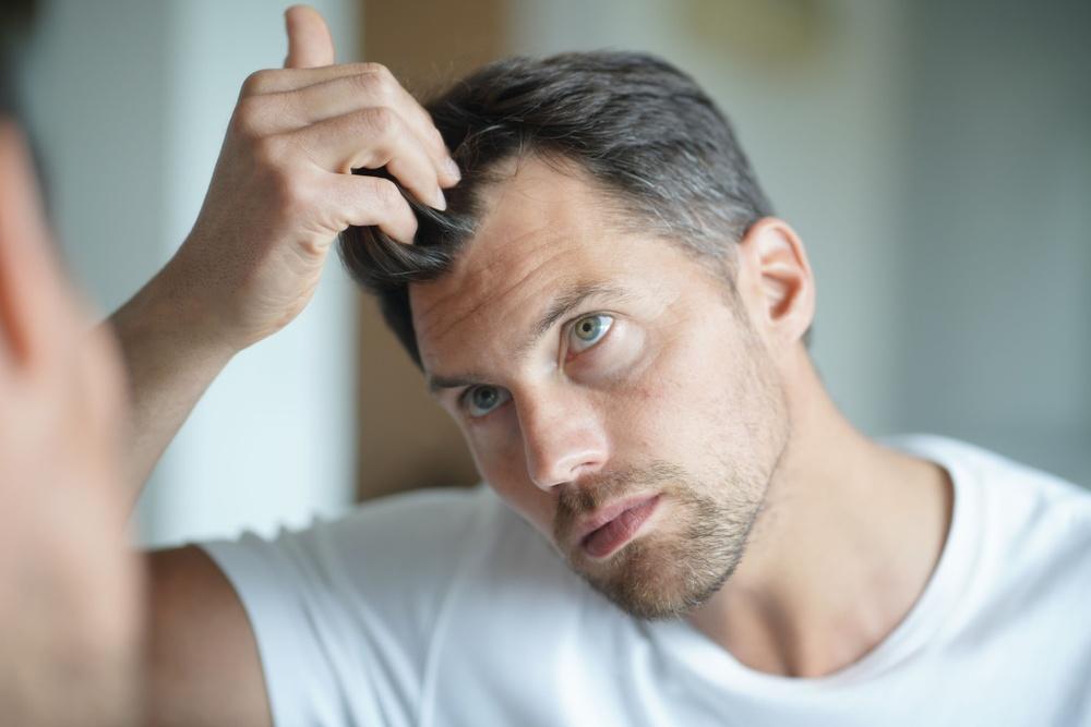 Healthstories-Πως βιώνουν άνδρες και γυναίκες την απώλεια των μαλλιών τους