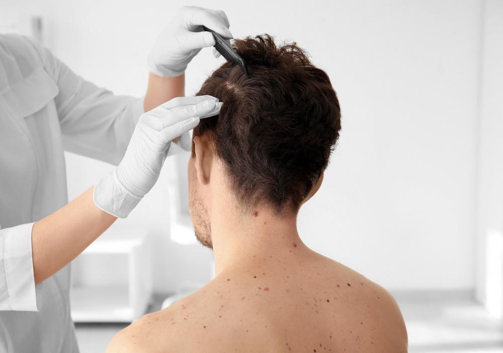Σπυράκια ανάμεσα στα μαλλιά - δεν είναι τόσο αθώα και δεν τα σπάμε