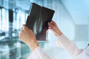 Καρκίνος μαστού: Η αξία της πρόληψης & της έγκαιρης διάγνωσης